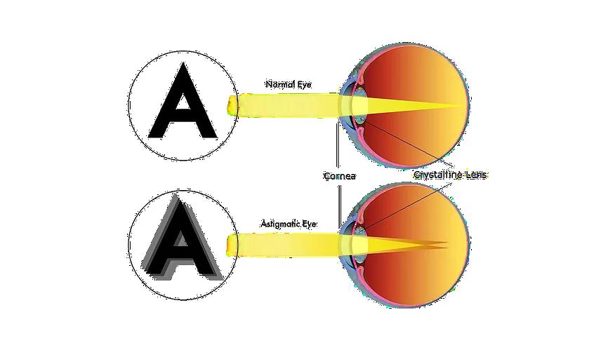 Astigmatism   Look & See Eyecare